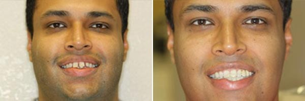 male patient before and after orthodontic treatment