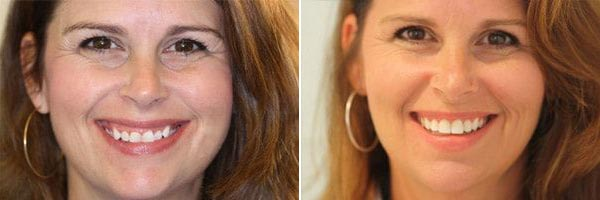 female patient before and after dental cosmetic treatments