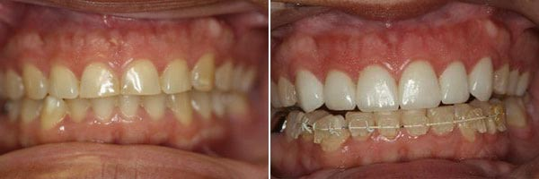 teeth before and during orthodontic treatment