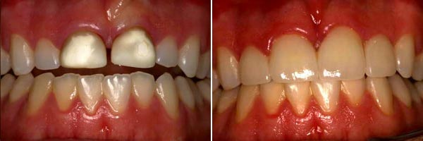 teeth before and after orthodontic treatment