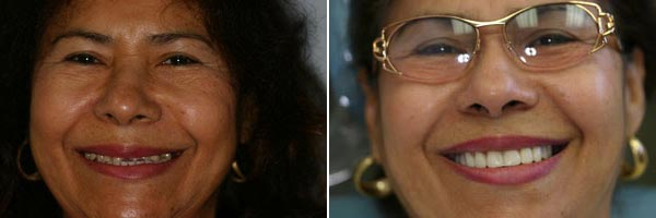 Female patient before and after dental cosmetic treatment