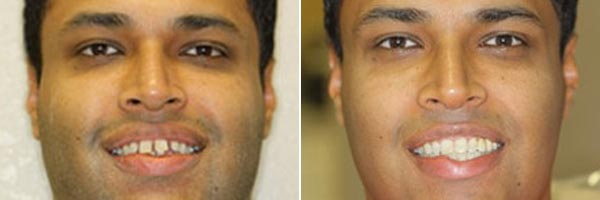 Male patient before and after dental cosmetic treatment