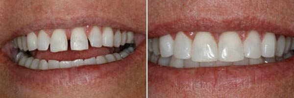 teeth before and after dental cosmetic treatment