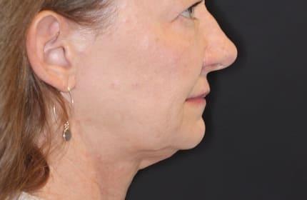 patient before TMJ/TMD treatment