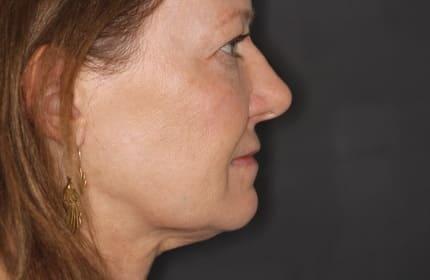 patient after TMJ/TMD treatment